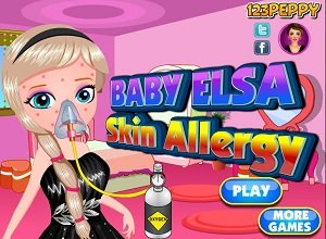 Baby Elsa Skin Allergy - Frozen Games